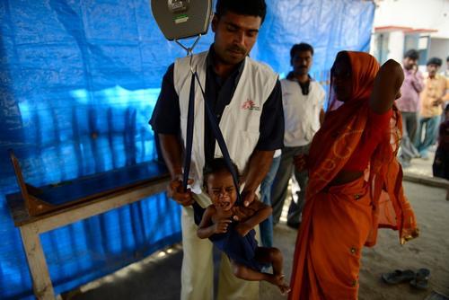 Malnutrition in Bihar