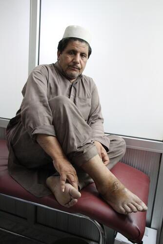 Saeepur Story  - Cutaneous Leishmaniasis Treatment, Peshawar