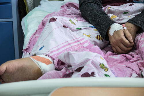 Zainab - war wounded - Mosul