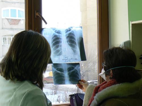 MSF treats DR-TB cases