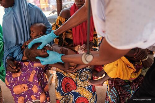 Doctor treating a child in Shinkafi