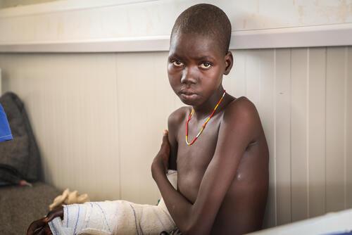 Awien Maguor, a snakebite patient in the post-op ward