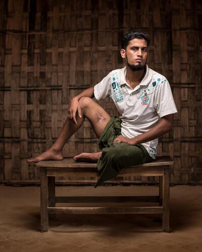 Mental Health: Rohingya Trauma and Resilience - Asmot Story