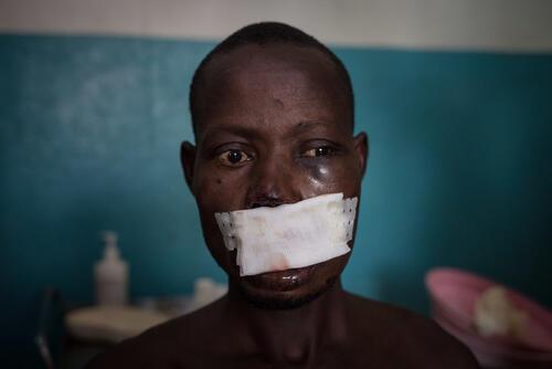 Violence hit Paoua region