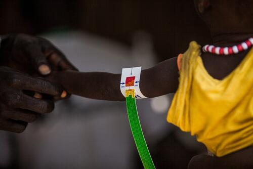 Malaria and malnutrition in South Sudan, Bentiu PoC, Sept 2015 Brendan Bannon.