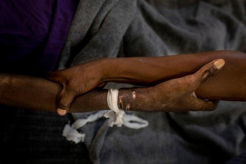 Advanced HIV in Kinshasa
