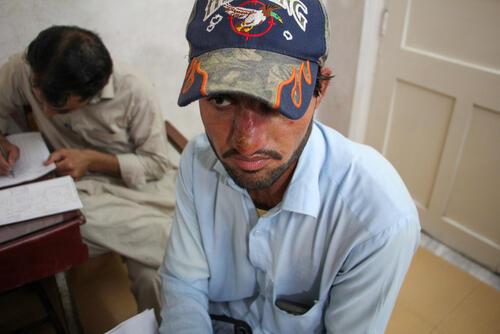 Cutaneous leishmaniasis in Pakistan: Patient testimonies