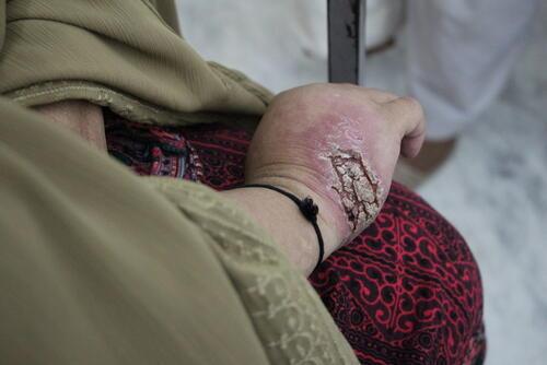 Mrs Iqbal Story - Cutaneous Leishmaniasis Treatment, Peshawar