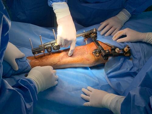 Surgeries in Al-Awda Hospital