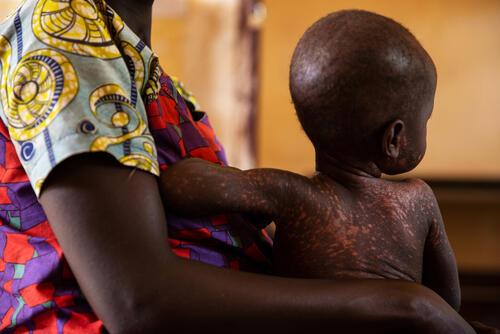 MSF Measles Intervention Bezambe: Nina and Ornella