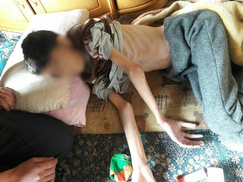 Madaya – Malnutrition