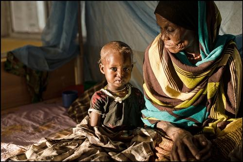 malnutrition in the pastoralist community of Fiq