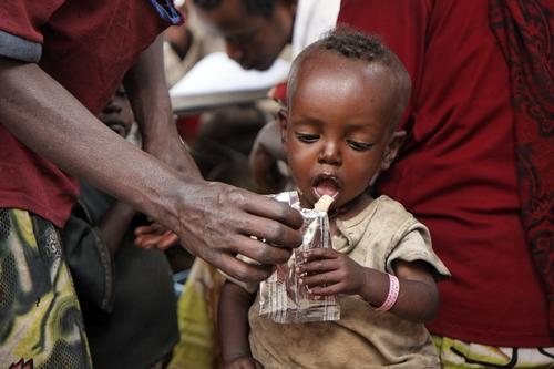 Nutrition centers for malnourished people (severe and modaretely cases)