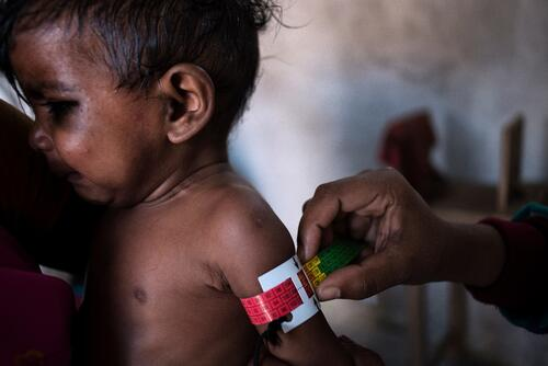 Malnutrition in Bihar, India