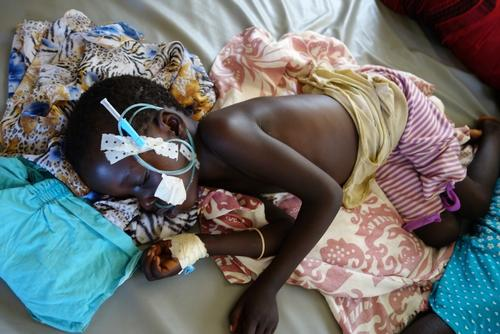 Malaria in South Sudan - Patient Story