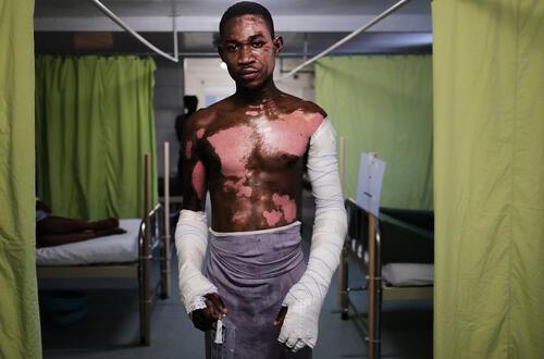 Treating Burn and Trauma Victims in Haiti